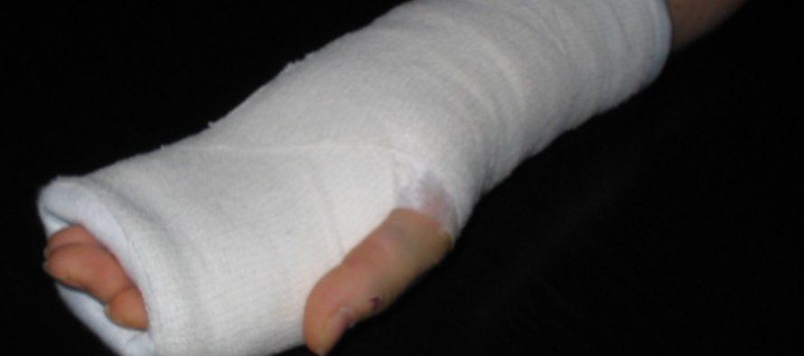 Под Рязанью 5-летней девочке отказались лечить руку из-за просроченного гипса